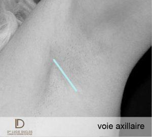 voie axillaire chirurgie mammaire