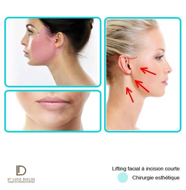 lifting facial à incision courte