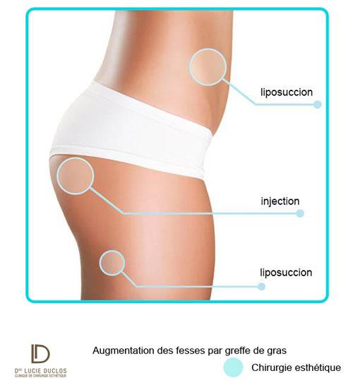 Augmentation des fesses par greffes de gras